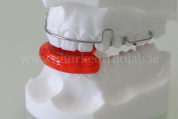 Functional Orthodontics