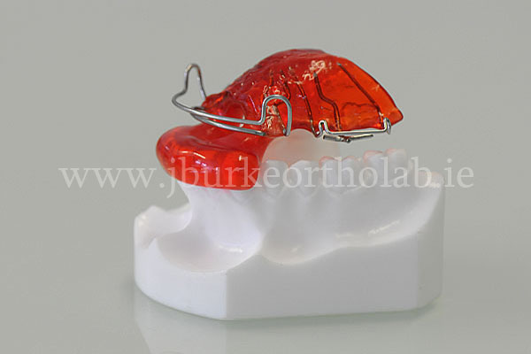 orthodontic appliances