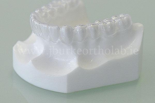 Retainers - Joseph Burke Orthodontic Laboratory